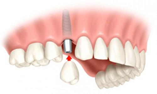 Medicinetic – De ce este important sa recurgem la implantul dentar ?