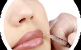 Tratamente acid hialuronic de la Cara Cris Cosmetics!
