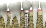 Un implant dentar, o solutie moderna de inlosuire a dintilor lipsa
